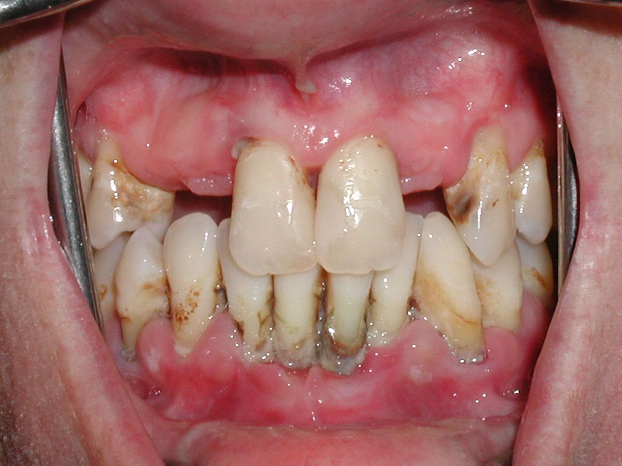 Periodontal Disease Archives - Periodical Dental Disease  Periodontal Dis...